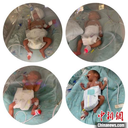四胞胎宝宝们正在克服呼吸、喂养、感染、大脏器发育的成熟度等难关。徐敬供图